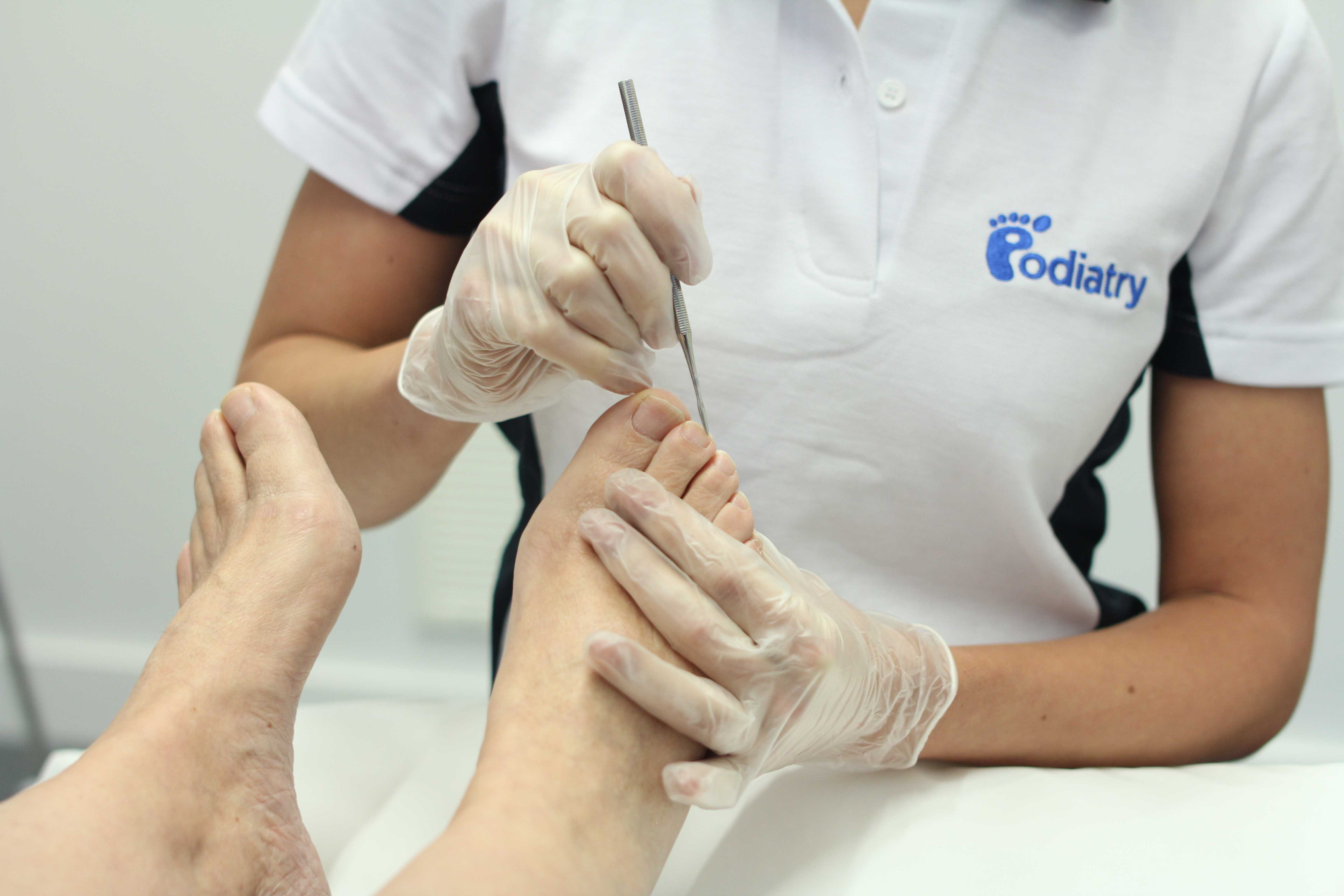 Podiatrist treating the dermal tissues around the affected nails
